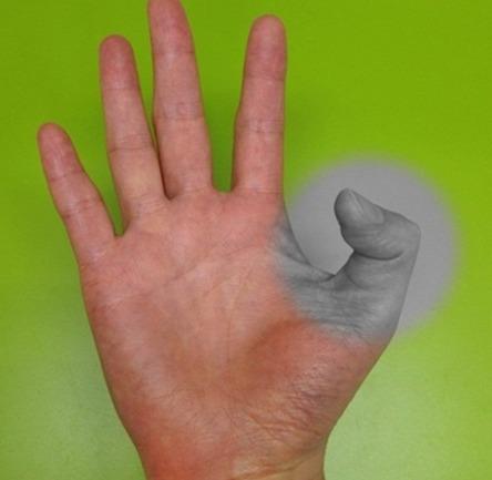 방아쇠수지의 원인, 증상 및 치료법