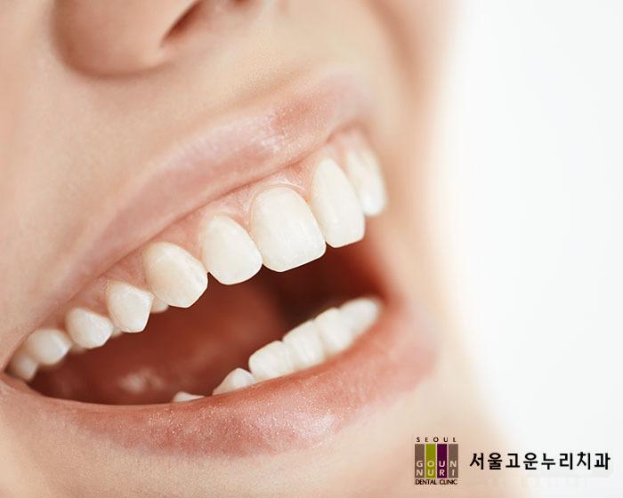 은평구교정치과, 치아교정 중 충치예방법은?