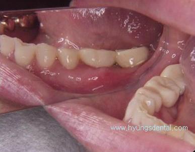 오래된 치과 브릿지(bridge) 제거 후 잇몸치료 & 재제작 - 용산구 이촌동 치과
